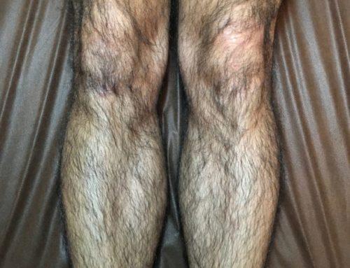 短パンを履くと足のムダ毛が。。