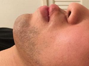 髭脱毛ビフォー画像