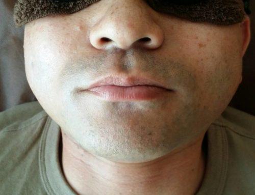 沖縄の男性必見!ヒゲ剃りが面倒な方へ
